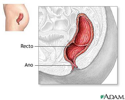 Reparación quirúrgica de prolapso rectal - Serie—Anatomía normal ...
