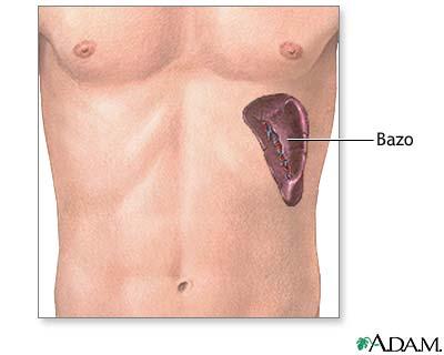 Extirpación quirúrgica del bazo - Serie—Anatomía normal: MedlinePlus ...