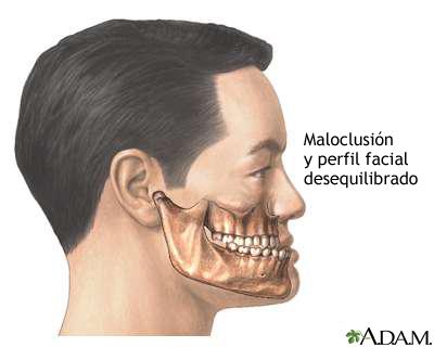 Maloclusión de los dientes