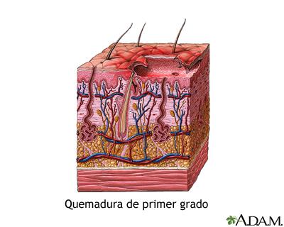 Quemadura de primer grado medlineplus enciclopedia m dica for Quemadura cuarto grado