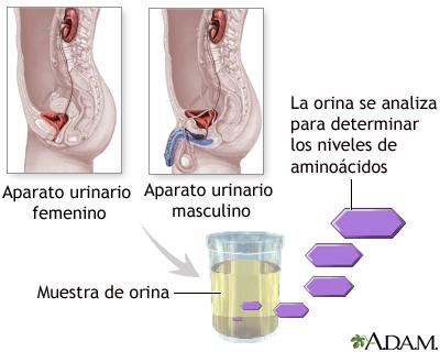 Prueba de aminoaciduria en orina