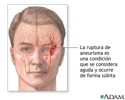 Ruptura de aneurisma intracraneal