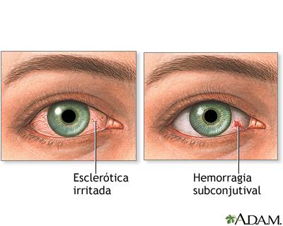 Ojos inyectados de sangre