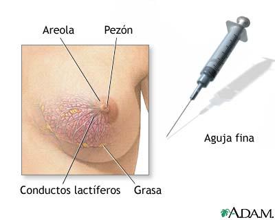 Biopsia de mama femenina