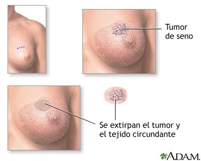 Excisión de un tumor en el seno