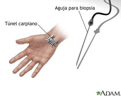 Biopsia carpal