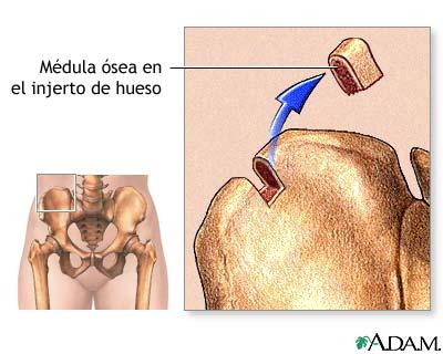 Médula ósea de la cadera: MedlinePlus enciclopedia médica illustración