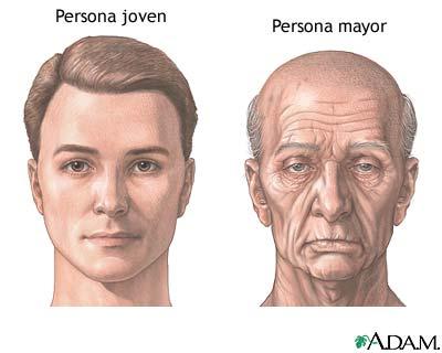 Cambios de la cara por envejecimiento