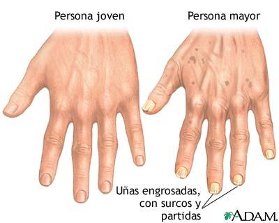 Cambios en las uñas por el envejecimiento