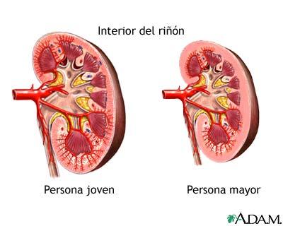Cambios en el riñón por el envejecimiento