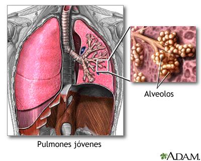 Pulmones y alveolos normales