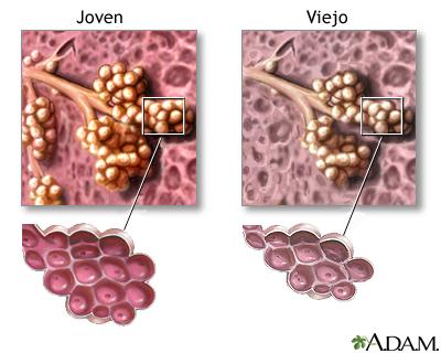Cambios en el tejido pulmonar por el envejecimiento