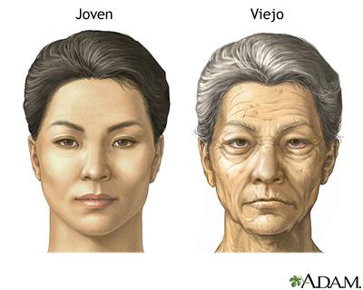 Cambios en la cara por el envejecimiento