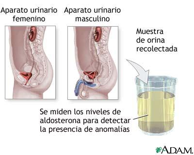 Examen del nivel de aldosterona