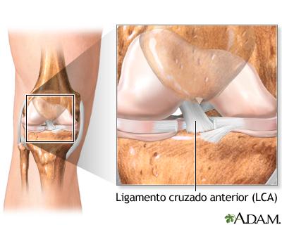 Anatomía de una rodilla normal: MedlinePlus enciclopedia médica ...