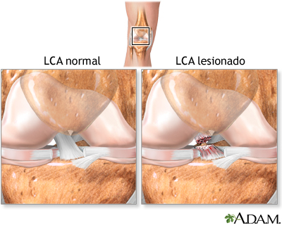 Lesión del ligamento cruzado anterior (LCA): MedlinePlus ...