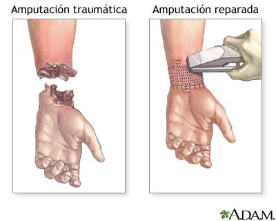 Reparación de amputación