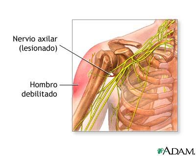 Daño al nervio axilar