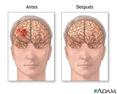 Antes y después de la reparación de un hematoma