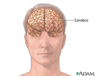 Anatomía de un cerebro normal