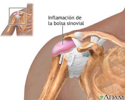 Los dolores en los riñones a la derecha al mioma