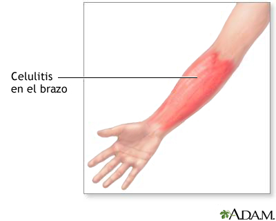Celulitis en el brazo