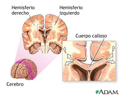 Cuerpo calloso del cerebro: MedlinePlus enciclopedia médica illustración