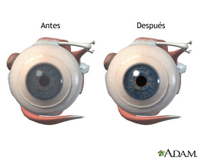 Antes y después de cirugía corneal