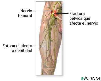 Daño al nervio femoral