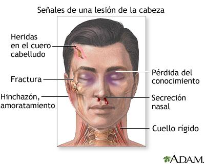 Indicios de lesión de la cabeza