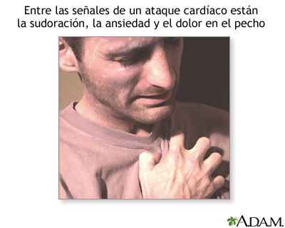 Síntomas de un ataque cardíaco