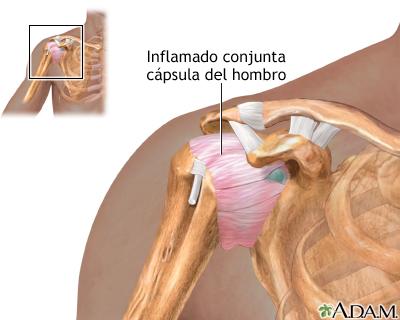 Inflamación de la articulación del hombro