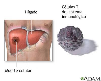Muerte de las células hepáticas