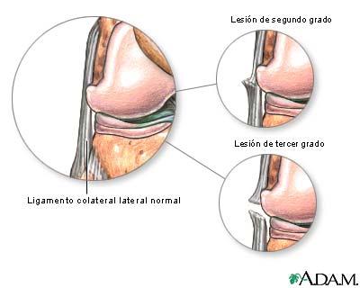 Lesión del ligamento colateral lateral