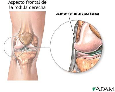 Lesión ligamento lateral externo de rodilla - Salud y Bienestar ...
