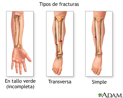 Tipos de fractura (2)