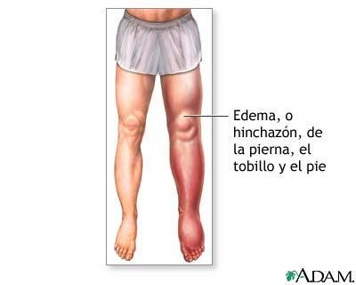 Edema en la parte baja de la pierna