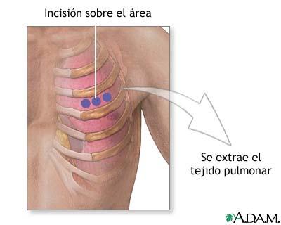 Incisión para biopsia de pulmón