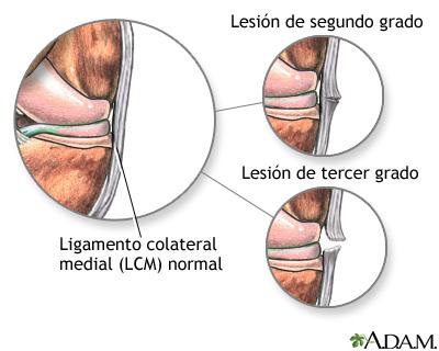 Lesión del ligamento medial colateral
