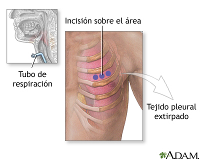 Incisión para biopsia de tejido pleural