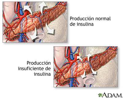 Producción de insulina y diabetes