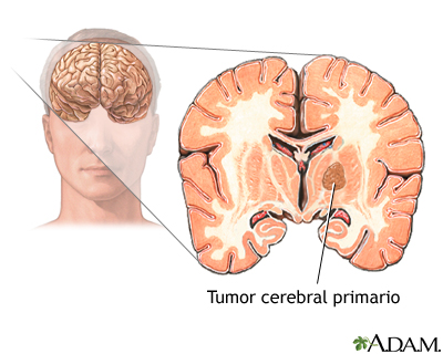Tumor cerebral primario