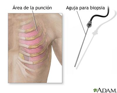 Biopsia pleural