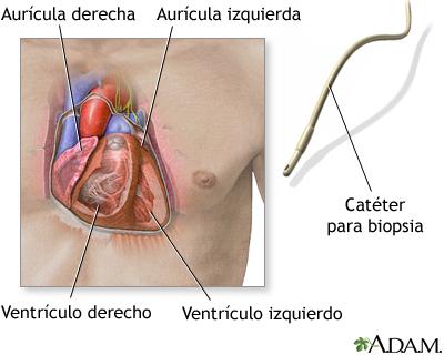 Catéter para biopsia