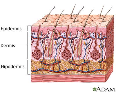 Capas de la piel: MedlinePlus enciclopedia médica illustración