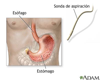Examen de ácido estomacal