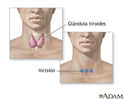 Incisión para realizar cirurgía de la glándula tiroidea: MedlinePlus ...
