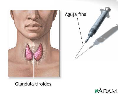 Biopsia de la glándula tiroides