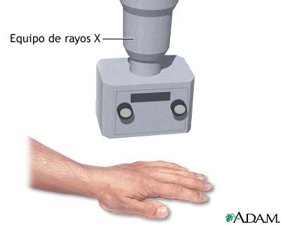 Rayos X de la mano