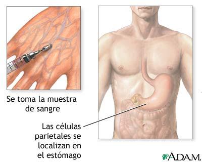 Anticuerpos de las células parietales